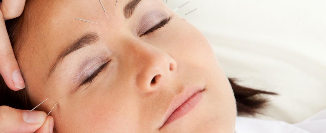 beeld-acupunctuur-02